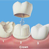dental-treatments_0003_crowns