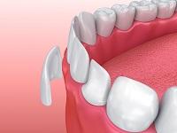 dental-treatments_0002_veneers